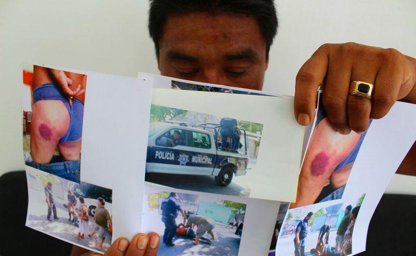 El denunciante presentó fotografías ante Derechos Humanos. (Daniel Pacheco/SIPSE)