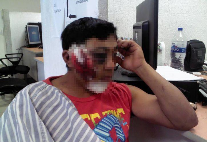 """En la mesa XI de guardia del Ministerio Público del Fuero Común (MPFC) puso la denuncia en contra de Christian Alejandro Martínez Jiménez, alias """"El Spot"""". (Redacción/SIPSE)"""