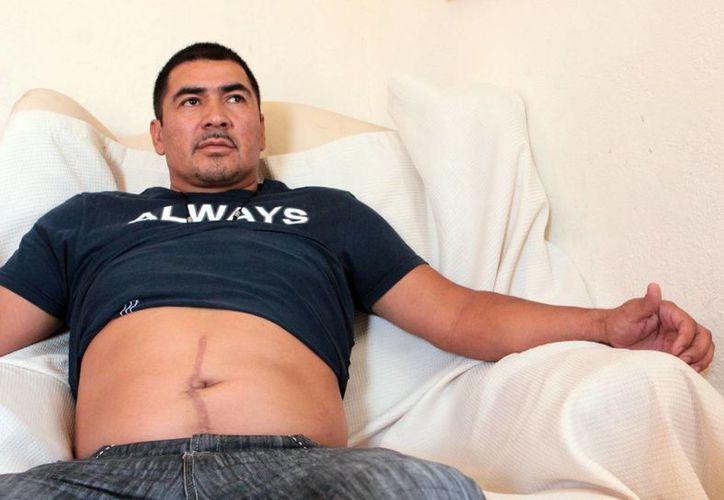 El mexicano Jesús Castro Romo quedó con lesiones permanentes que le impiden realizar esfuerzos. (investigations.nbcnews.com)