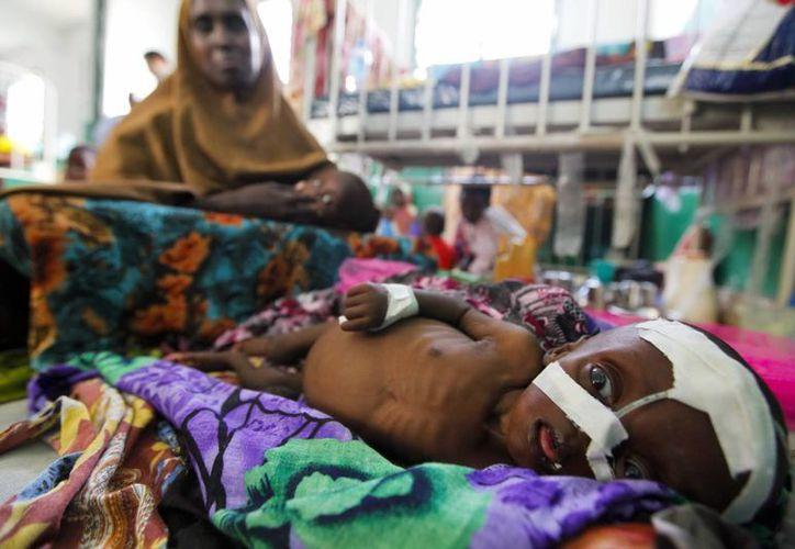 Un niño desnutrido recibe asistencia en el hospital Banadir de Mogadiscio, Somalia. (Archivo/EFE)