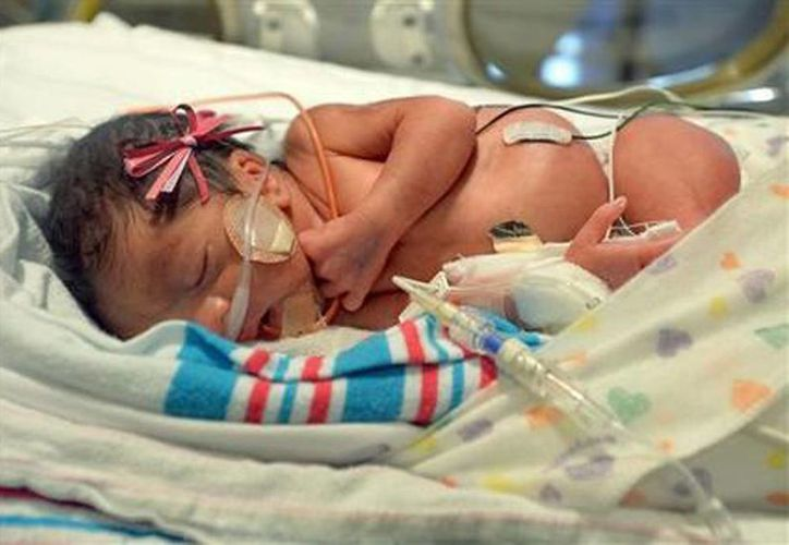 Camila Ramos duerme en la unidad de cuidados intensivos del centro médico de Fresno. Ella es una de los tres tríos de trillizos que nacieron en este hospital en junio. (Silvia Flores/The Fresno Bee vía AP)