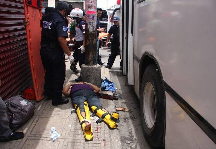 La mujer atropellada por la unidad de pasaje sufrió fractura de ambas piernas. (Cuauhtémoc Moreno/SIPSE)
