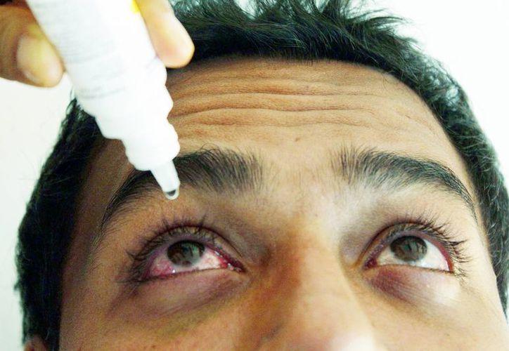 La conjuntivitis se puede originar de diversas maneras, pero la mayoría de los casos son de tipo alérgico. (Milenio Novedades)