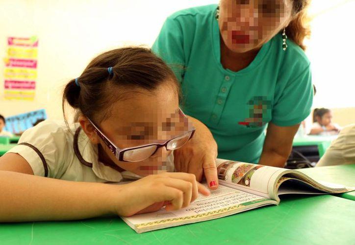 Algunas personas requieren usar lentes desde muy pequeños. Imagen de una niña con problemas de la visión. (Milenio Novedades)