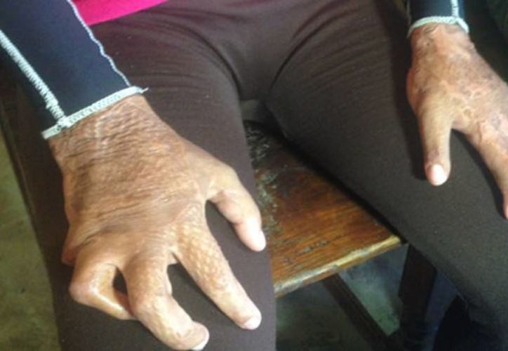 Victoriana sufrió quemaduras en el 65% de su piel, en un accidente ocurrido el año pasado en Chetumal. (imparcialoaxaca.mx)