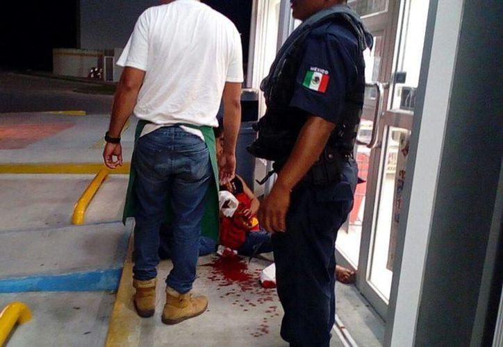 Testigos del atraco ayudaron a la mujer, mientras llegaban los paramédicos. (Foto: Redacción)