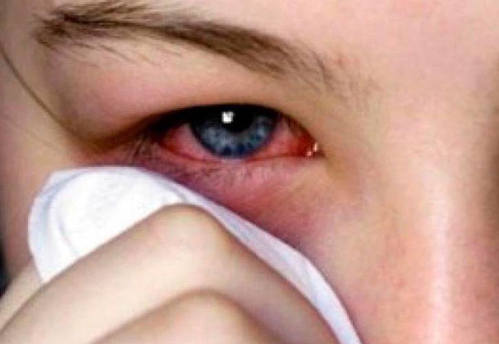 La epidemia de conjuntivitis rebasa ya los 10 mil casos de la enfermedad en Yucatán. (Milenio Novedades)