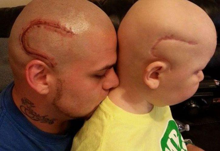 Ambos mostraban dos cicatrices idénticas en la cabeza. (Facebook)