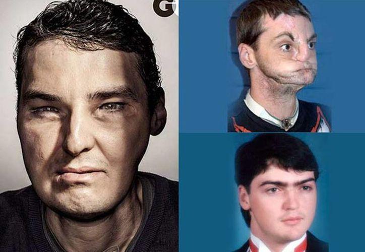 Richard Norris, se sometió a uno de los trasplantes de cara más complejos de la historia. (Excelsior)