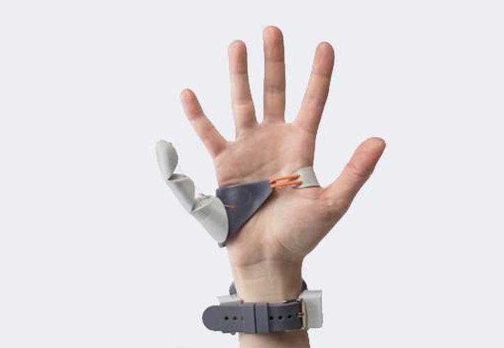 La prótesis incluye dos articulaciones que se controlan a través de sensores de presión. (Foto: SDP)