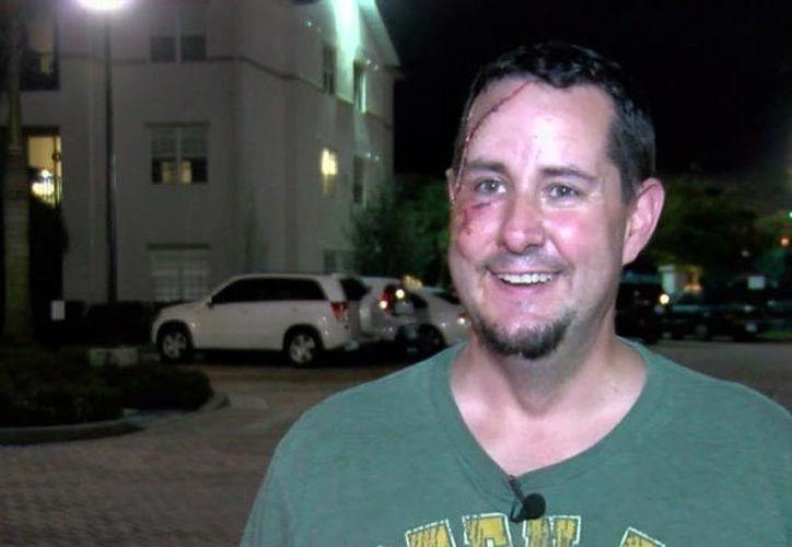 Andrew Meuiner terminó con una laceración facial a causa del ataque del oso. (Foto: Excélsior)