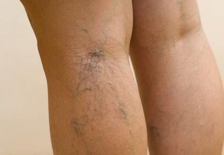 Las várices pueden controlarse con una terapia adecuada. (infovarices.com)