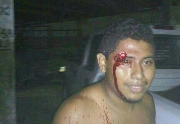 Uno de los habitantes de Nicolás Bravo, que fue herido durante el desalojo carretero la noche de ayer. (Twitter / @educosas1)