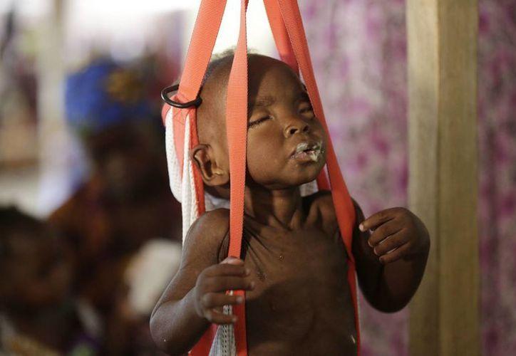 Un niño malnutrido en una báscula para pesarle en una clínica gestionada por Médicos Sin Fronteras en Maiduguri, Nigeria. (AP/Sunday Alamba)