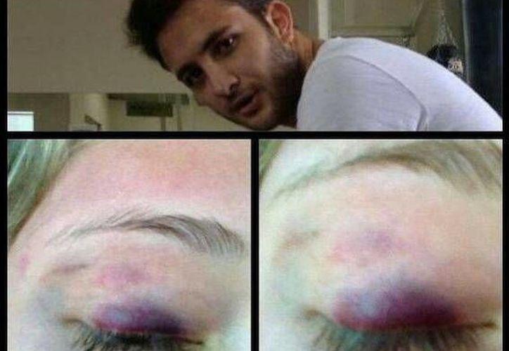 Las autoridades dijeron que la joven no interpuso una denuncia. (Twitter.com/@AlexiaImaz)