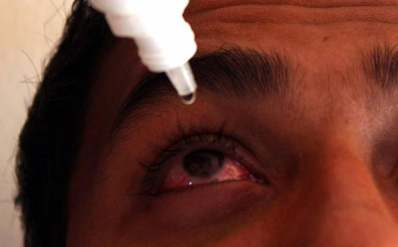 Suman 18 mil 159 casos de conjuntivitis en Quintana Roo