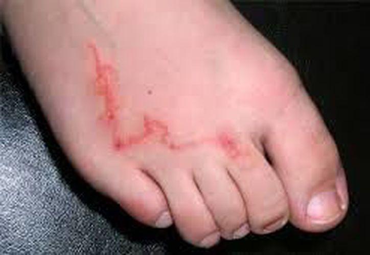 Este padecimiento es conocido como la enfermedad del 'caminito'.  (Tomada por www.mdsaude.com)