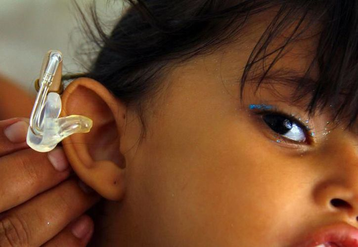 Los auxiliares auditivos también fueron colocados a los beneficiarios. (Foto: Milenio Novedades)