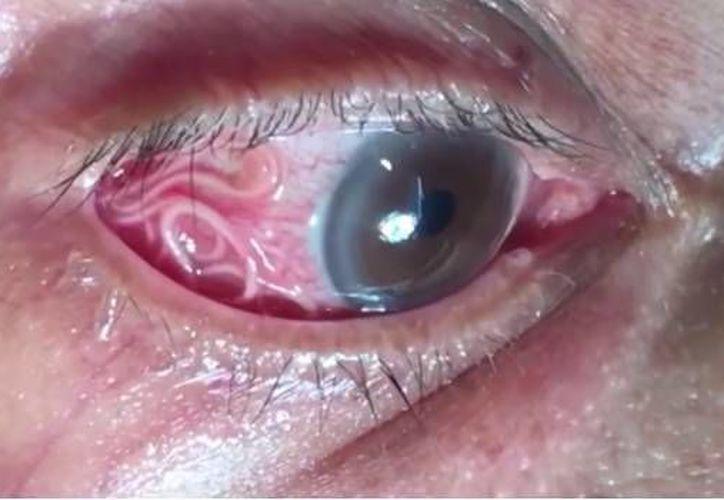 Un hombre de 60 años acudió al hospital de Karnataka manifestando sentir comezón y dolor en el ojo derecho; era un gusano de 15 centímetros. (SDPnoticias)