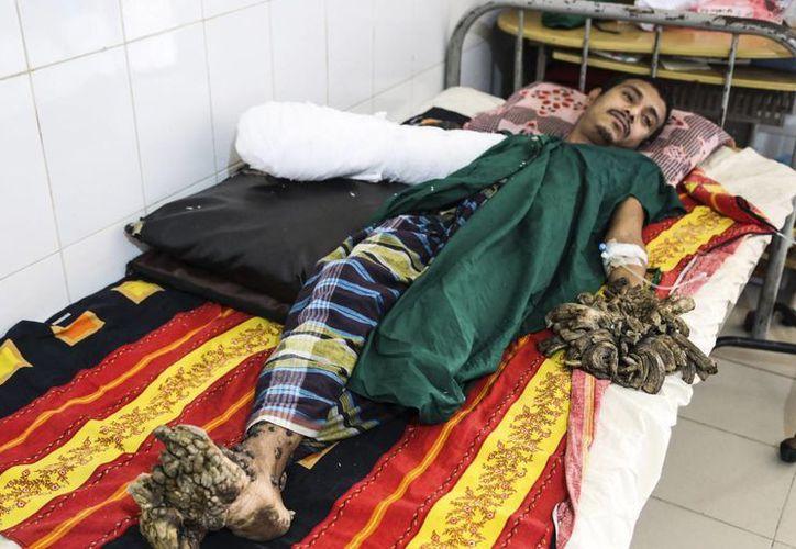 """El joven bangladesí Abul Bajandar, conocido como """"hombre árbol"""", en en el Hospital Universitario de Dacca tras ser operado por primera vez de una extraña enfermedad mediante la cual había desarrollado pesadas verrugas con forma de corteza de árbol en manos y pies. (Archivo/EFE)"""
