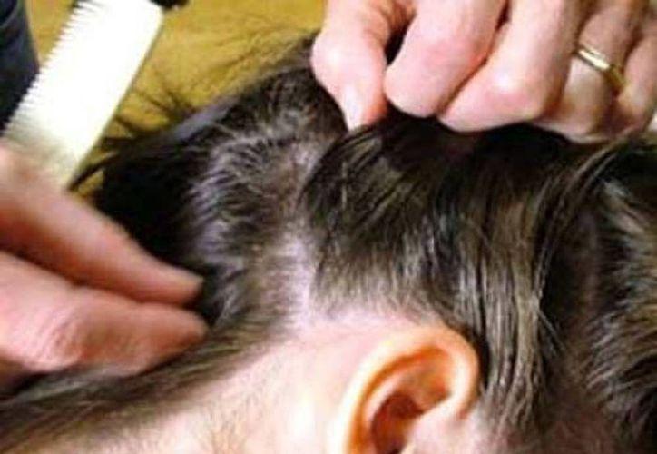 La nuca y detrás de las orejas son las áreas donde proliferan los piojos. (Milenio Novedades)