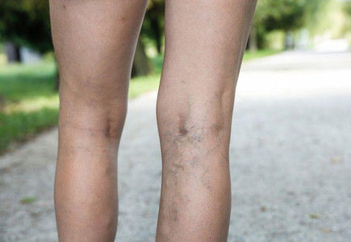 Las várices aparecen por el funcionamiento inadecuado de las válvulas venosas de las piernas. (vitonica.com)