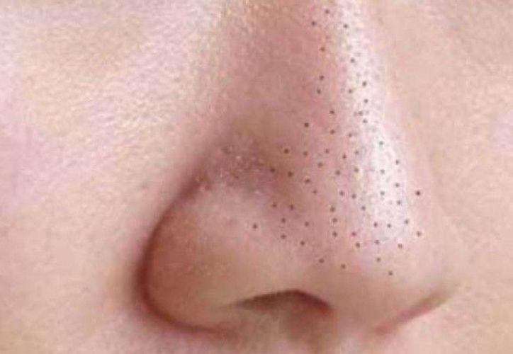 Elimina los puntos negros de la nariz con este sencillo truco. (Contexto/Internet).