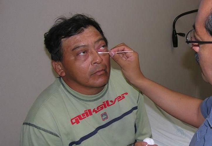 La conjuntivitis no es algo grave que ocasione la pérdida visual, los síntomas no duran más de dos semanas y el ojo vuelve a la normalidad. (SIPSE)