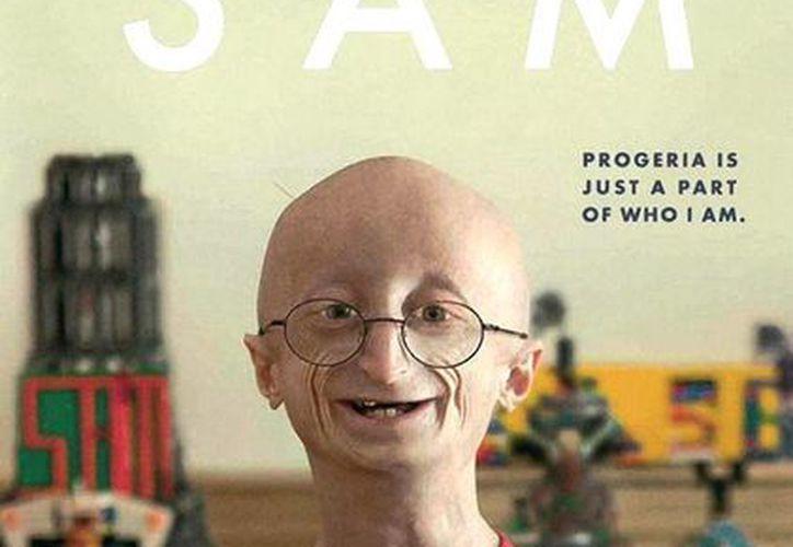 """La historia de Sam Berns se dio a conocer en el documental de HBO """"Life According to Sam"""", donde se detalla su lucha contra el síndrome de progeria. (Facebook/Progeria Research Foundation)"""