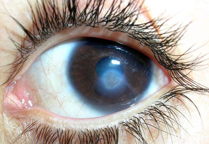 Remedios populares sólo agravan el problema, afirman oftalmólogos. (Internet)