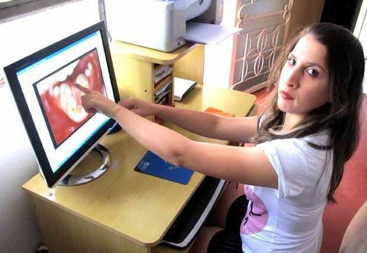 Auristela Silva tenía todos los dientes inferiores diseminados en el lugar de la lengua. (profissaodentista.com.br)