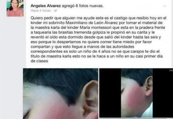 La tía del menor lesionado, de 4 años de edad, fue quien denunció que una maestra de una escuela Montessori lo lastimó. (Foto tomada de excelsior.com.mx)