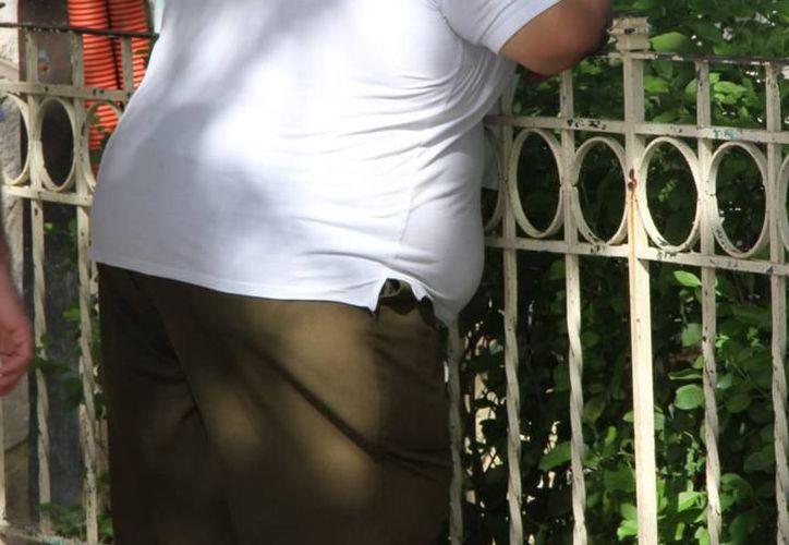 Los médicos deberían tratar, ya sea con fármacos o cirugía, los casos de obesidad que presenten un problema real para el paciente. (Milenio Novedades)