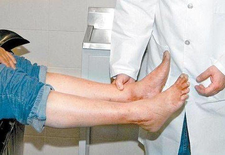 Los expertos recomiendan revisarse constantemente en busca de lesiones, ampollas u hongos. (Milenio)