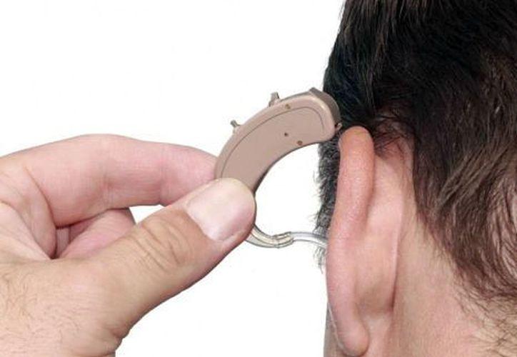 Los dispositivos auditivos tienen un alto costo. (Foto: Milenio Novedades)