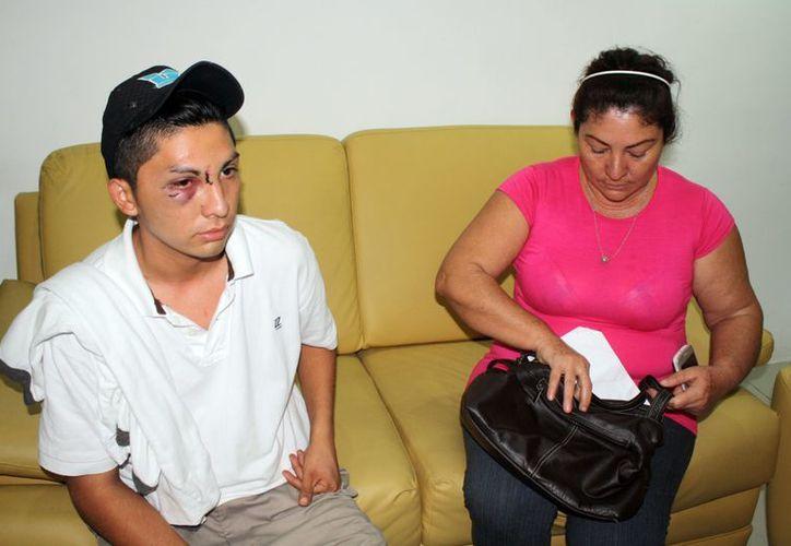 Uno de los jóvenes que ha vivido en carne propia la brutalidad policíaca, al momento de hacer su denuncia. Francisco Sansores/SIPSE)