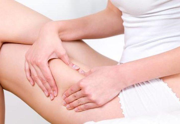 El mejor tratamiento para eliminar la celulitis en las piernas se basa principalmente en la alimentación y el ejercicio. (Contexto/Internet)