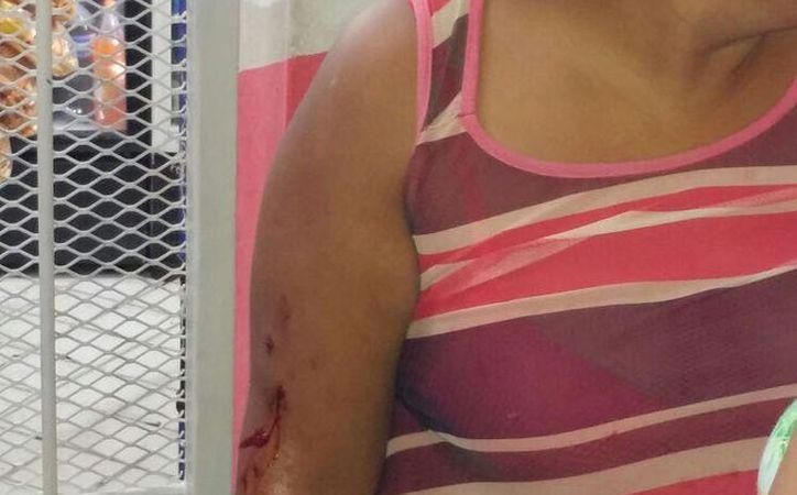 La mujer presentaba un rozón en el brazo derecho. (Redacción)