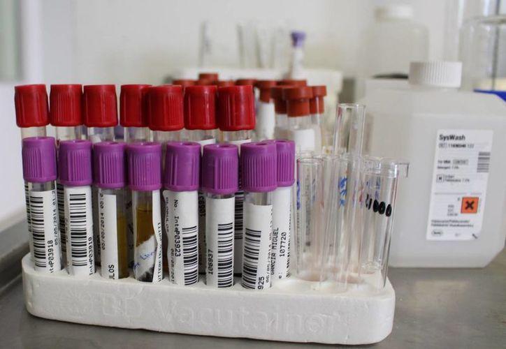 Se estima que por cada persona que sabe que tiene el virus, hay entre 10 y 20 que no saben que están contagiados.  (Yesenia Barradas/SIPSE)