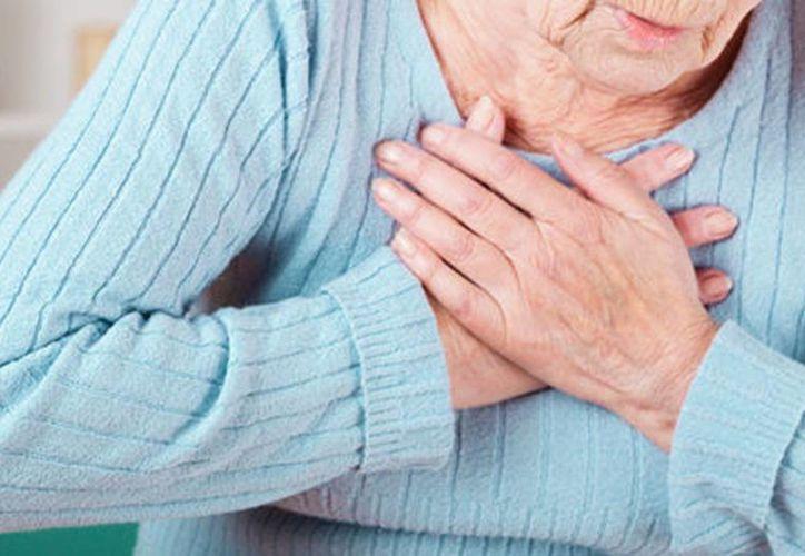 Reportan un incremento de 67% en los casos de embolia en Yucatán. Los síntomas son: debilidad en manos,  brazos o piernas y dificultad para hablar, ente otros. (Archivo/Agencias)
