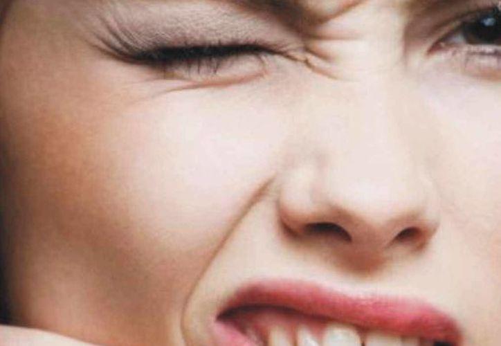 """El acné es una enfermedad común de la piel. Es lo que conocemos popularmente como """"granos"""" o """"espinillas"""".(Contexto/Internet)"""