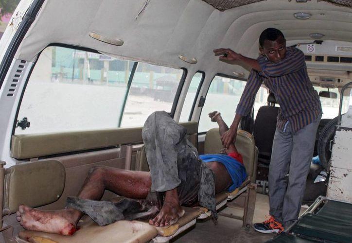 Al menos 35 muertos fue el saldo de un ataque de terroristas de Al Shabab contra un hotel en Mogadiscio, capital de Somalia. En la foto, uno de los sobrevivientes. (EFE)