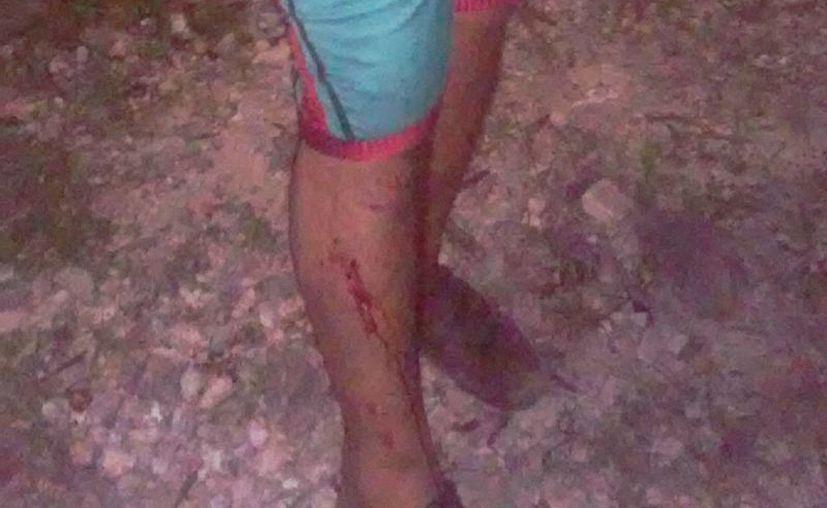 El maestro resultó con lesiones en una pierna. (Raúl Balam/SIPSE)
