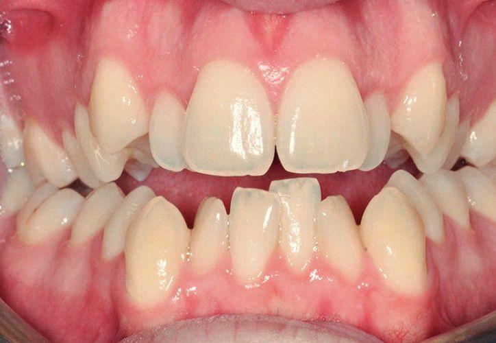 """El """"apiñamiento"""" se le conoce a tener los dientes """"amontonados"""", girados o mal colocados. (Imagen tomada de internet)"""