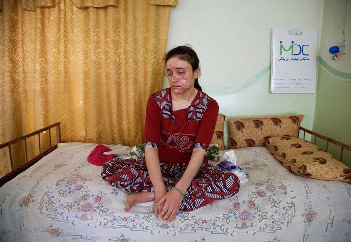 Lamiya Aji Bashar, una muchacha yazidi de 18 años que logró escapar a sus captores de la agrupación Estado Islámico. (Agencias)