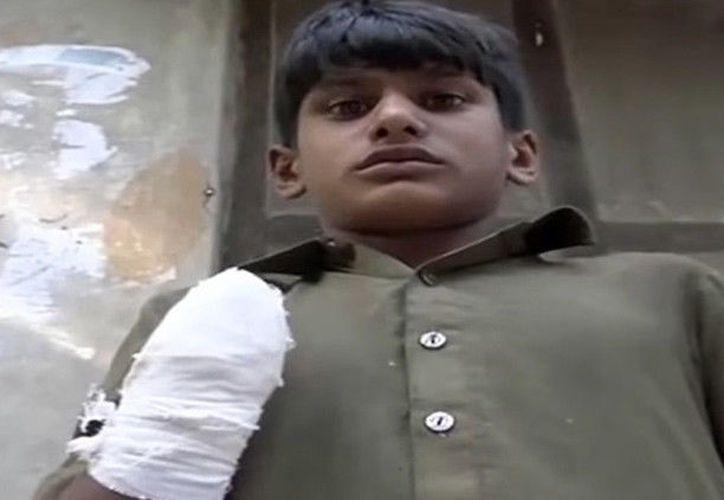 Una mujer ha cercenado la mano de un adolescente de 13 años en el noreste de Pakistán. (@24 News HD).