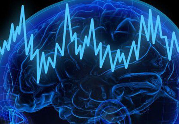 Las terapias electroconvulsivas son seguras, pero no para cualquier paciente. (psiquiatria.com)