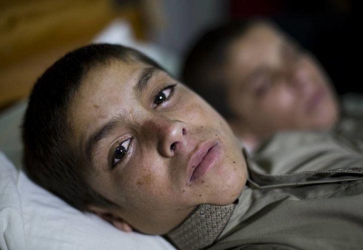 Los niños paquistaníes Abdul Rasheed (izq), y Shoaib Ahmed están exhaustos en la cama de un hospital en Islamabad, Paquistán. (Agencias)