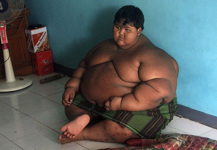 Arya Permana, es considerado como uno de los niños más obesos del mundo. (AFP)