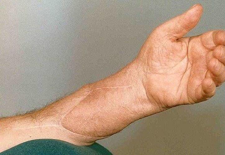 Visagli perdió una mano y parte del brazo a los 22 años de edad y a los 35 le fue trasplantada una. (diariodom.com)